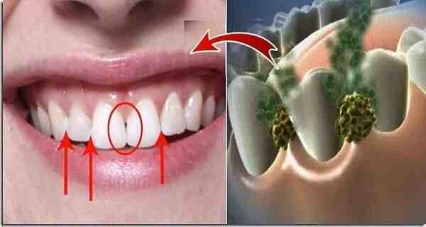 Comment diminuer la mauvaise haleine du matin ?